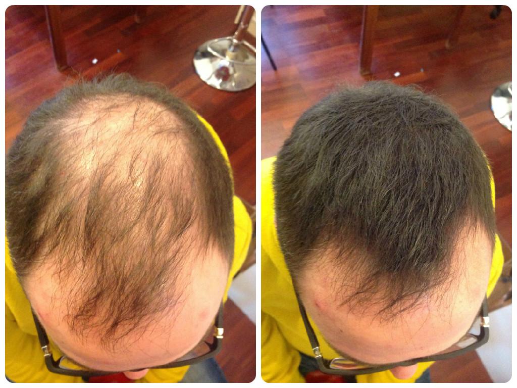 Как восстановить волосы от выпадения отзывы