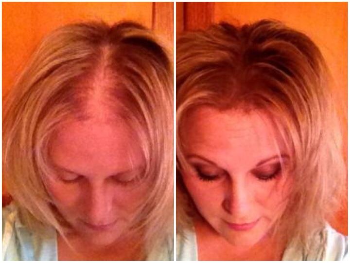 Как вернуть густоту волос