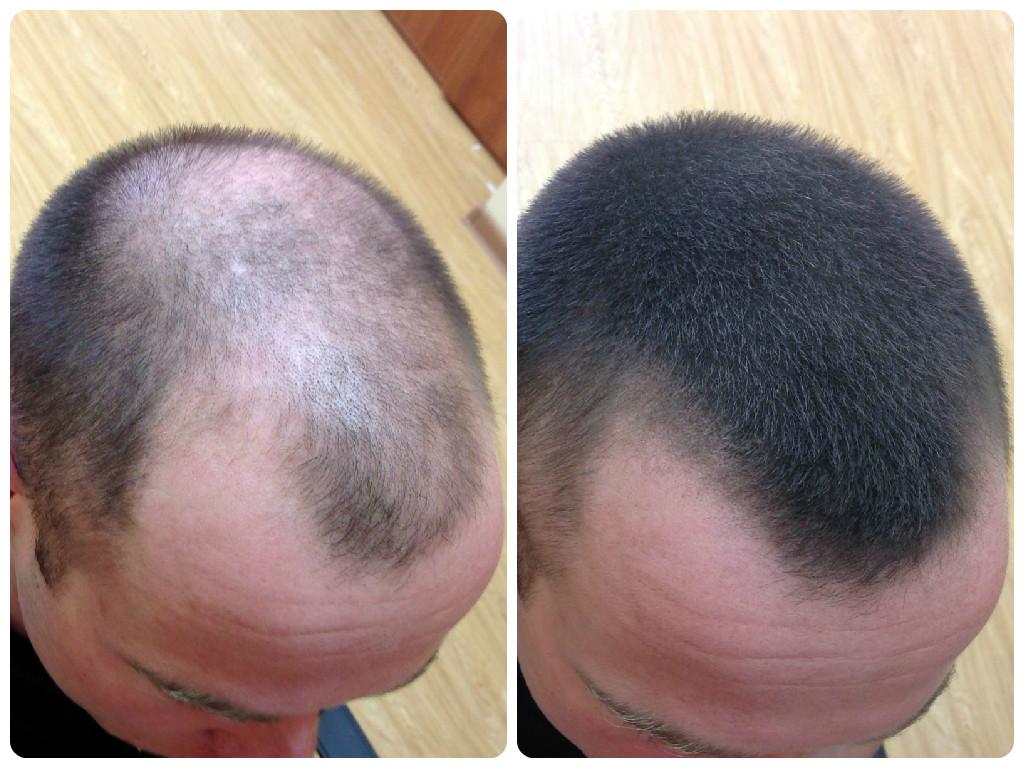 Редкий волос у мужчин что делать
