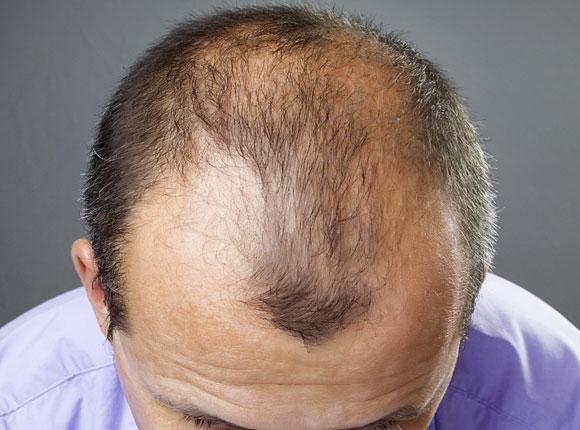 У парня выпадают волосы что делать