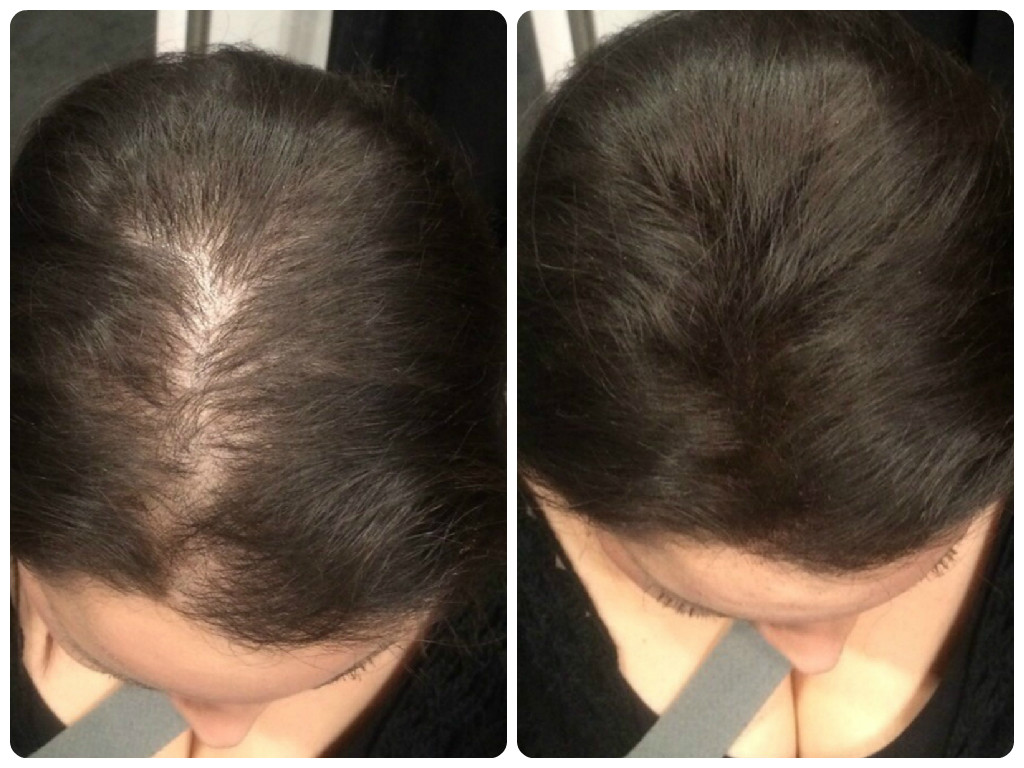 Причины сухости ломкости и выпадения волос